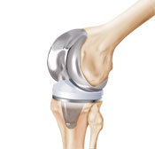 DePuy Knee Problems