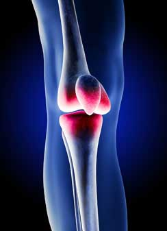 Idaho DePuy Knee Attorney