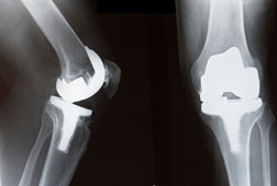 Austin DePuy Knee Lawsuits